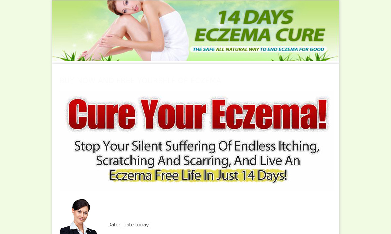 The a href='/external_link/26283'14 Days Eczema Cure/a Homepage