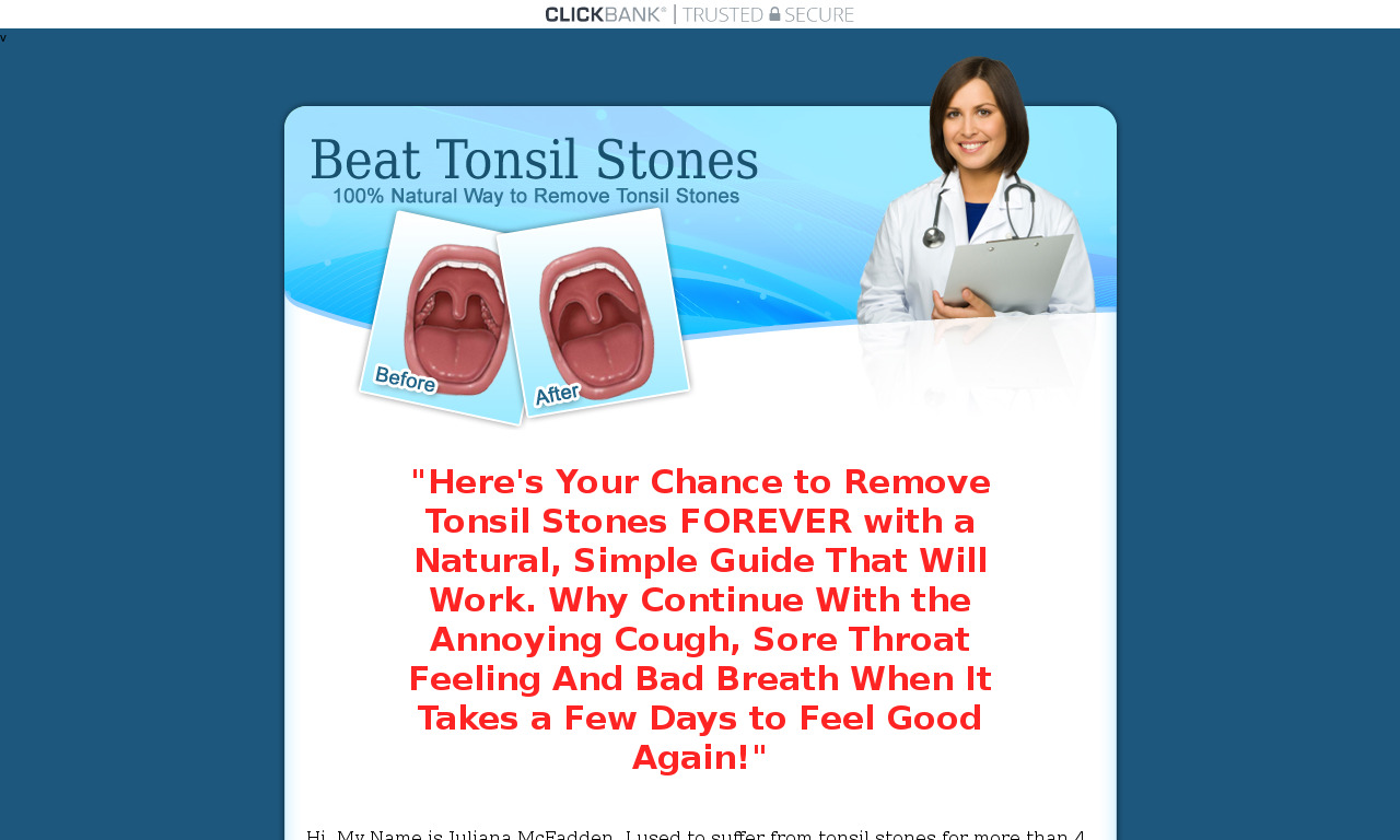 The a href='/external_link/149871'Beat Tonsil Stones/a Homepage