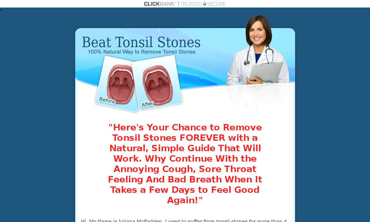 Beat Tonsil Stones